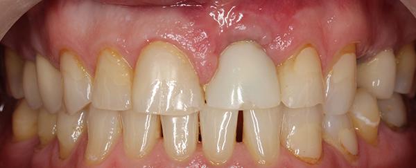 Fot. 5. Wygojone tkanki miękkie po 4 miesiącach od odsłonięcia implantow.