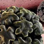 Fundusz Walki z Rakiem – propozycja zmian w onkologii