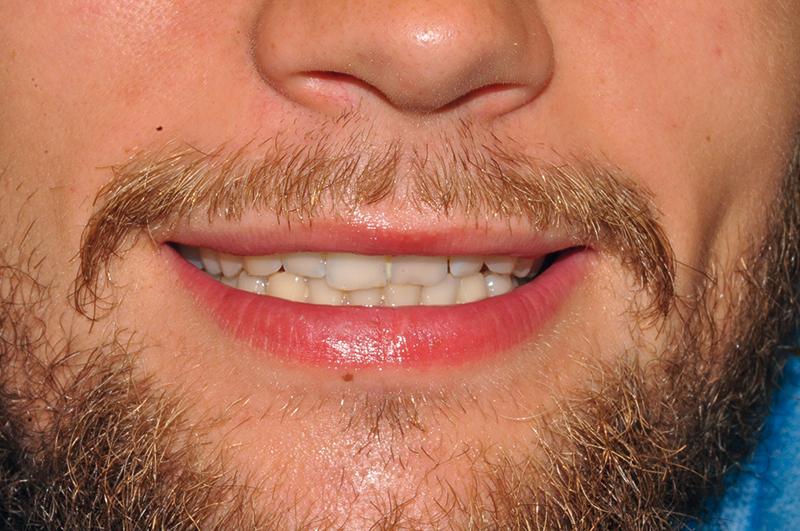 1. Pacjent, lat 29, zgłosił się do kliniki implantologicznej po pobiciu, został zaopatrzony doraźnie w innym gabinecie. W badaniu fizykalnym stwierdzono zszynowane od strony podniebiennej zęby 11 oraz 21.