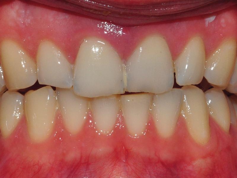 2. Niewielkie zwichnięcie z doprzedsionkowym przemieszczeniem zęba 21.