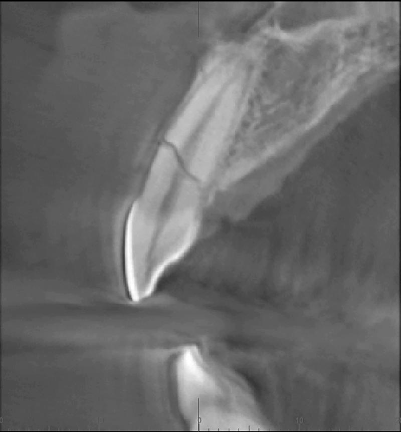 3. Widoczne w obrazie TK złamanie poprzeczne korzenia zęba 11.