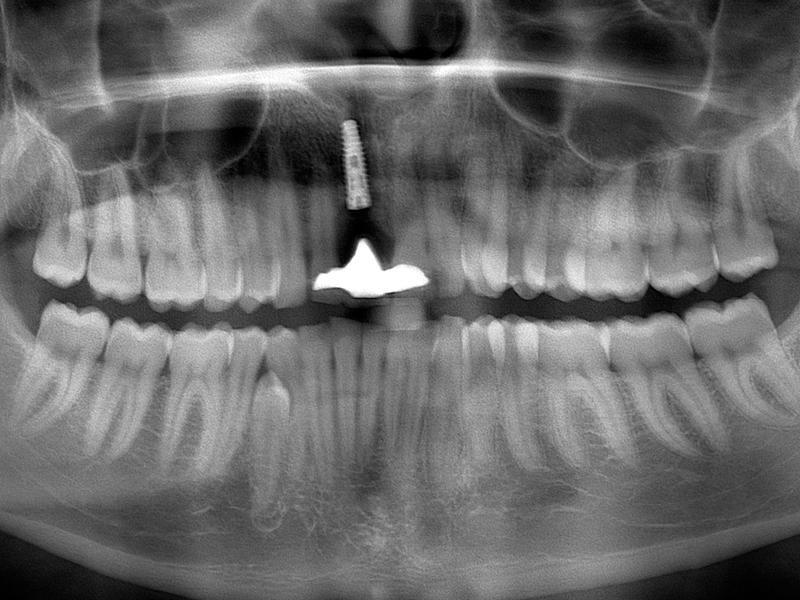 9.  Na okres przejściowy związany z wgajaniem się implantu pacjent został zaopatrzony w uzupełnienie tymczasowe odtwarzające brak zęba 21 – most adhezyjny typu Maryland. Po upływie około 21 tygodni przystąpiono do części implantoprotetycznej. Wykonano RTG panoramiczne kontrolne, które wykazało brak zaniku tkanki kostnej wokół wszczepu oraz brak zmian zapalnych.