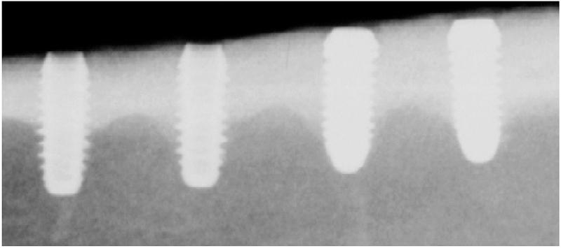Fot. 1. Radiogram pokazujący implanty tytanowe (po lewej) i cyrkonowe (po prawej) wszczepione w kość piszczelową miniświnki po 12 tygodniach leczenia.