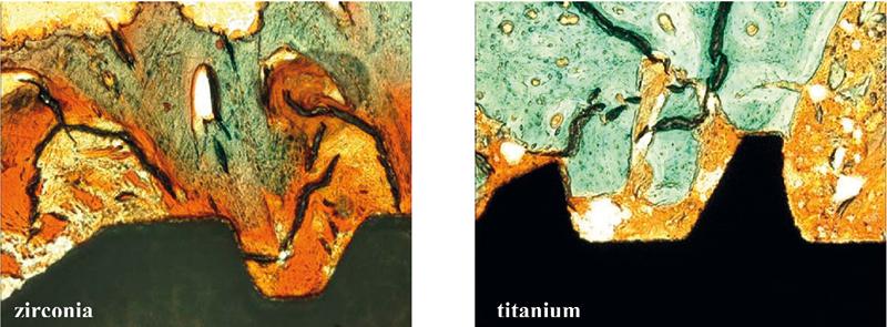 Fot. 2. Mikrofotografia pokazująca tkankę ziarninową bogatą w substancję podstawową (wybarwiona pomarańczowo) między implantem a kością (wybarwiona zielono). Po lewej implant cyrkonowy, po prawej tytanowy (barwienie Masson-Trichrome-Goldner, pow.100x).