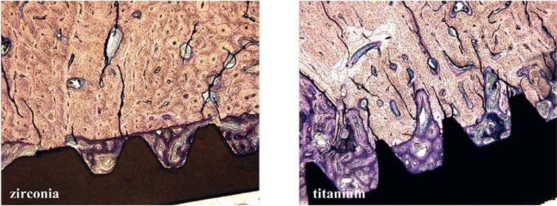 Fot. 3. Osteoid i kość splotowata utworzone na powierzchni implantów cyrkonowych (po lewej) i tytanowych (po prawej) w 4 tygodnie po implantacji (barwienie błękitem toluidyny, pow. 50x).