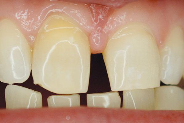 Fot. 1. Erozje zębów przednich – w wywiadzie nawyk ssania cytryny.