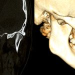 Chirurgia ortognatyczna a objawy dysfunkcji narządu żucia