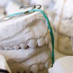 Retencja, czyli postępowanie końcowe w leczeniu ortodontycznym