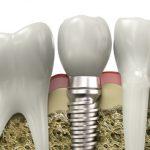 Implanty stomatologiczne – w Polsce tanio