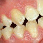 Białe plamy próchnicowe – etiologia, rozpoznanie, terapia