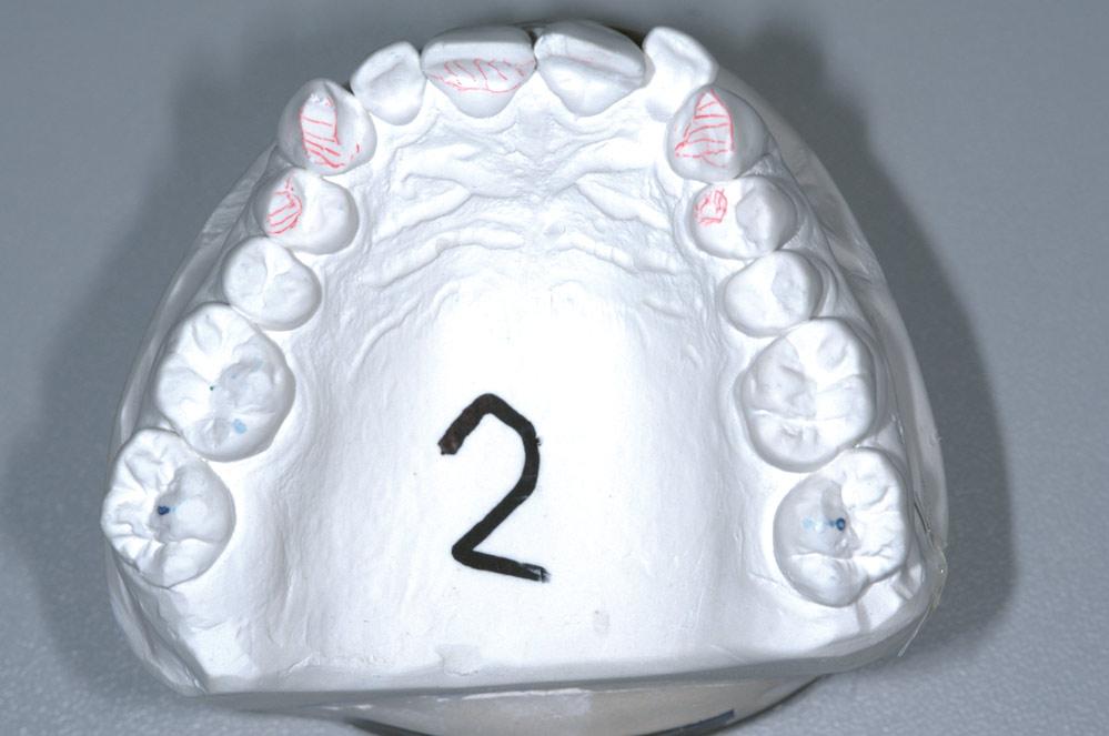 Fot. 1a. Widok okluzyjny szczęki ukazujący starcie zębów oraz punkty pierwszego kontaktu.