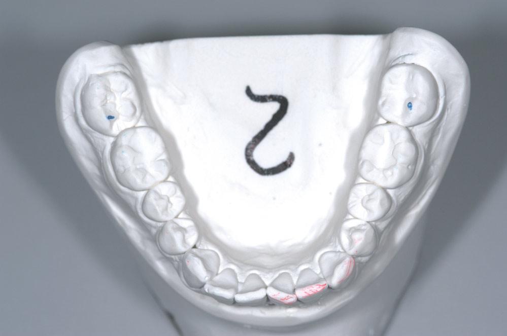 Fot. 1b. Widok okluzyjny żuchwy ukazujący stracie zębów oraz punkty pierwszego kontaktu.