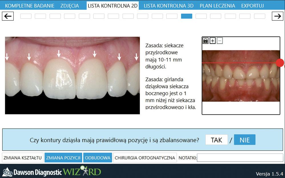 Fot. 3. Współpraca ortodonty oraz protetyka podczas planowania leczenia jest niezmiernie istotna.