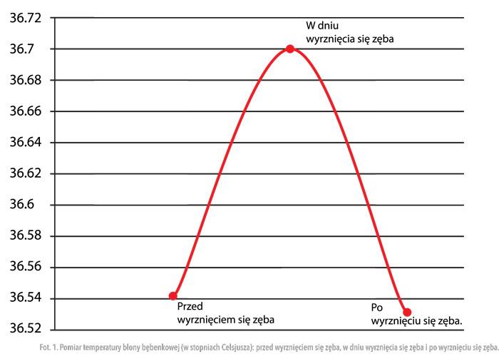 Rys. 1. Pomiar temperatury błony bębenkowej (w stopniach Celsjusza): przed wyrznięciem się zęba, w dniu wyrznięcia się zęba i po wyrznięciu się zęba