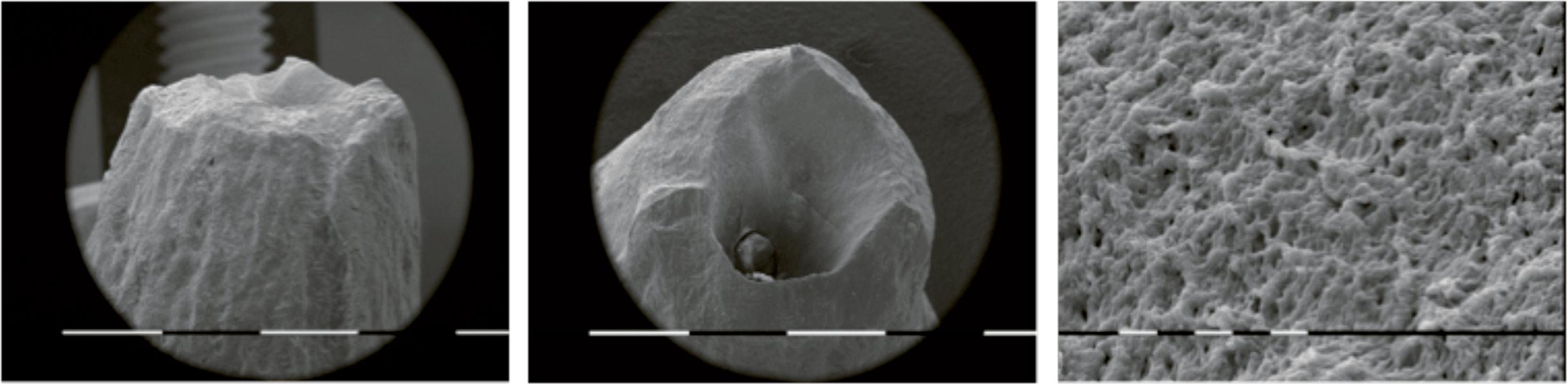 Fot. 8. Ocena w SEM (w różnych powiększeniach) zęba po odcięciu wierzchołka laserem Er:YAG: powierzchnia przecięcia (a), jama kanału korzeniowego przygotowana do wstecznego wypełnienia (b), zębina wewnątrz kanału korzeniowego, bez warstwy mazistej i pęknięć ©.