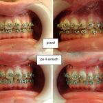 Dodziąsłowa aplikacja atelokolagenu – zabieg z zakresu medycyny estetycznej twarzy poprawiający kondycję dziąsła