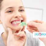 Ruchomy aparat ortodontyczny leczy wady zgryzu u dzieci