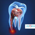 Zapalenie miazgi zęba – objawy, przyczyny, leczenie