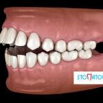 Co dalej z zębami po zdjęciu aparatu ortodontycznego?